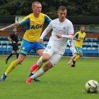 MUŽI B: FK Teplice vs. FC Slovan Liberec 4:3np